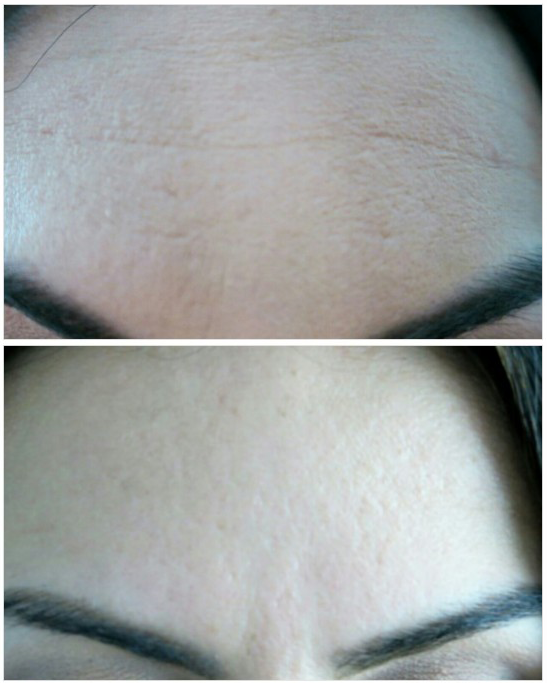 Before and after botox at Synergy plastic surgery & Spa