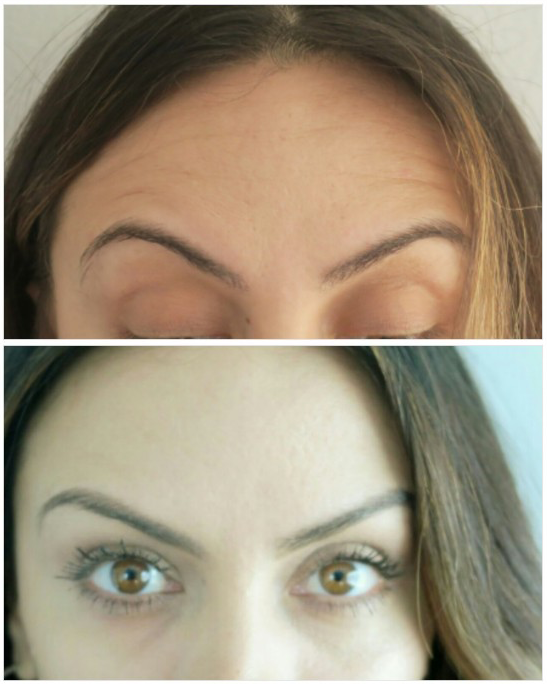 Second view before and after Botox at Synergy Plastic Surgery & Spa