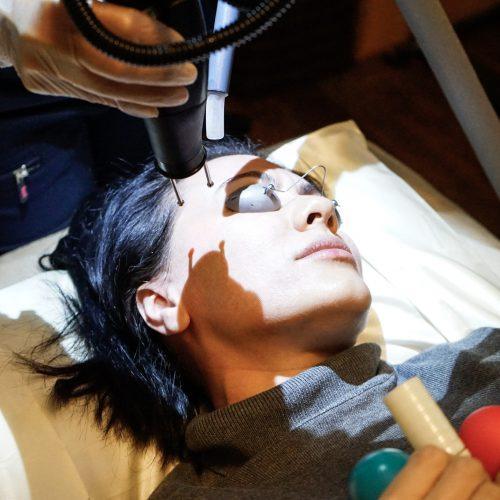 Erbium Laser At Innate Beauty In Austin Tx